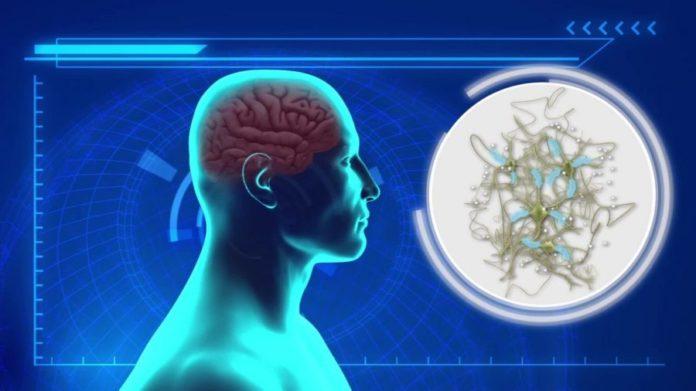 биочип от болезни альцгеймера